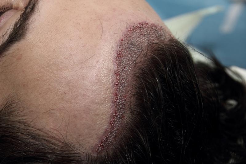Razvan dupa implantul de par