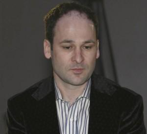 Robert Negoita la scurt timp dupa implantul de par