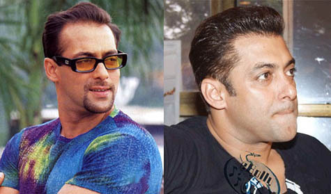Salman Khan Before and After Hair Transplant Implant de par