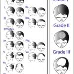 Alopecia androgenica – Scara Norwood-Hamilton pentru barbati si Scara Ludwig pentru femei