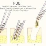 Transplant / implant de par metoda FUE
