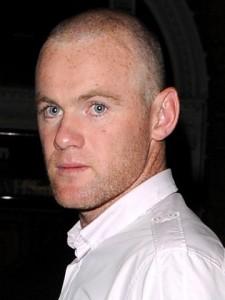 Rooney dupa al doilea implant - hair transplant