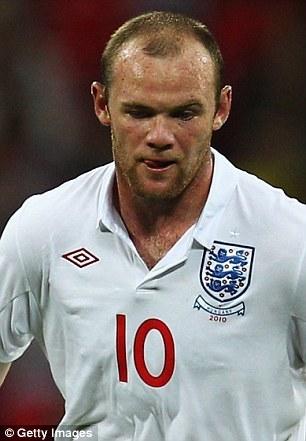 Rooney Hair Implant